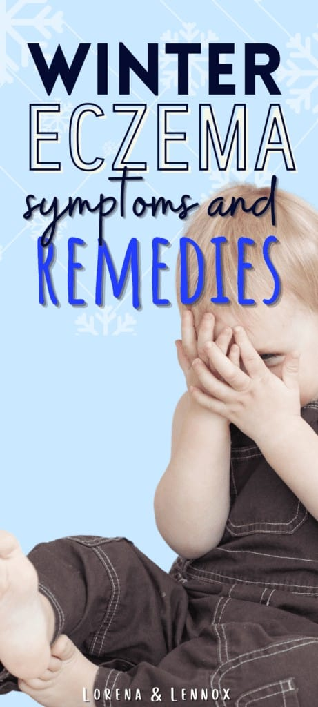 In this post you can learn more about what causes Eczema, as well as 11 Eczema remedies for babies, toddlers and children.